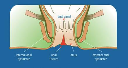 Information on anal