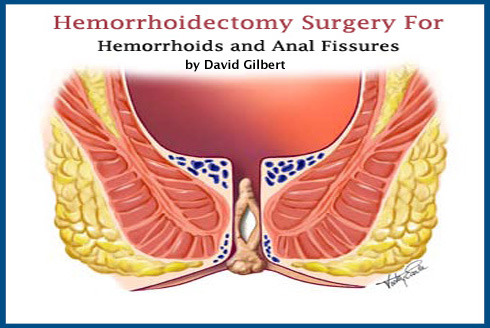 Hemorrhoid Surgery Hemorrhoidectomy