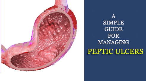 Treating peptic ulcers