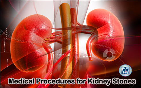 Medical procedures for kidney stones