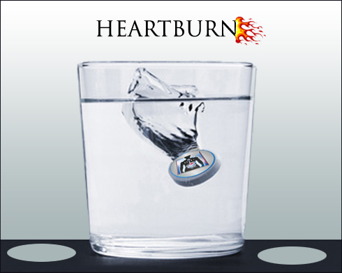 Heartburn Causes, Symptoms, Treatment