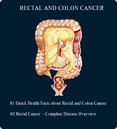 recal and colon cancer image