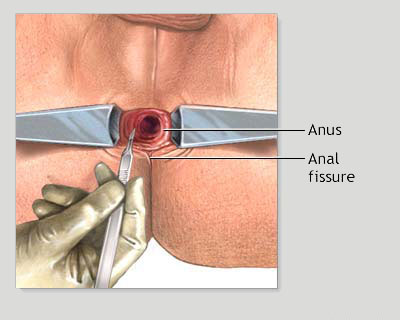 How to prevent anal fissures