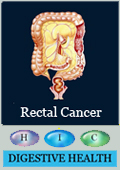 Health Article on Rectal Caner